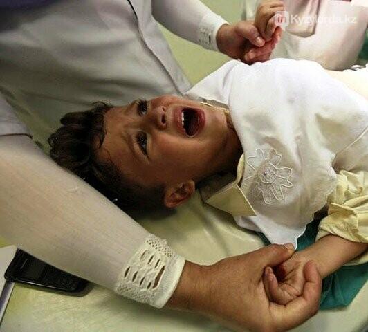 Возможно, обряд обрезания станет бесплатным для Казахстанцев, фото-1